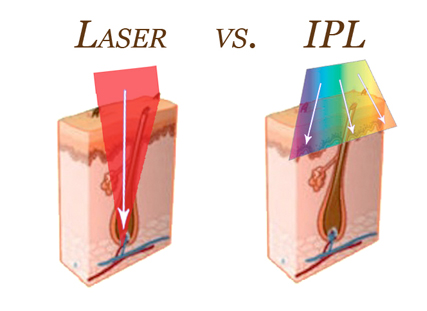 laseer vs ipl - Laser Vs IPL